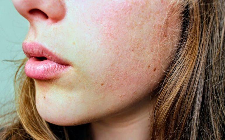 ako bojovať s akné