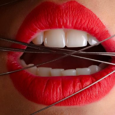 Čo zaberá na praskajúce a zapálené kútiky úst?