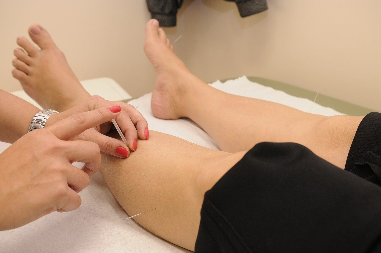 Vyskúšajte akupunktúru
